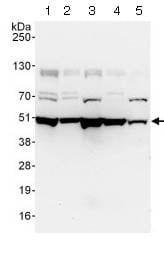 Western blot - Anti-Dynamitin antibody (ab124285)