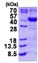 SDS-PAGE - ALAD protein (His tag) (ab124318)