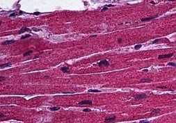 Immunohistochemistry (Formalin/PFA-fixed paraffin-embedded sections) - Anti-Ctip1 antibody [3D9] (ab124352)