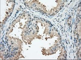 Immunohistochemistry (Formalin/PFA-fixed paraffin-embedded sections) - Anti-PKA R2 antibody [5F1] (ab124400)