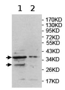 Western blot - Anti-HDC2 / PHC2 antibody (ab124405)