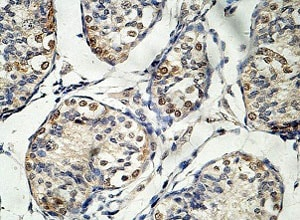 Immunohistochemistry (Formalin/PFA-fixed paraffin-embedded sections) - Anti-EID3 antibody (ab124447)