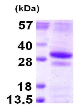 SDS-PAGE - GSTO2 protein (His tag) (ab124576)