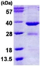SDS-PAGE - EYA2 protein (His tag) (ab124581)