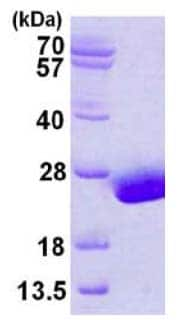 SDS-PAGE - Ube2H protein (His tag) (ab124593)