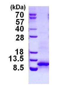 SDS-PAGE - CXCL1 protein (His tag) (ab124601)