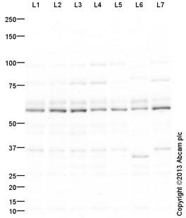 Western blot - Anti-GLYR1 antibody (ab124615)