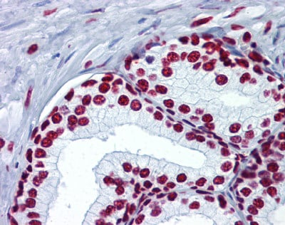 Immunohistochemistry (Formalin/PFA-fixed paraffin-embedded sections) - Anti-Histone H4 (acetyl K5) antibody (ab124636)