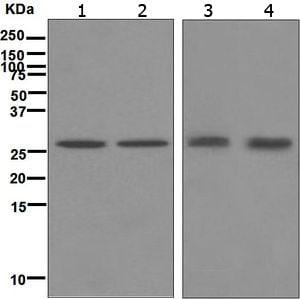 Western blot - Anti-Carbonic Anhydrase II antibody [EPR5195] (ab124687)