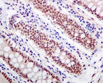 Immunohistochemistry (Formalin/PFA-fixed paraffin-embedded sections) - Anti-Cyclin E1 (phospho T77) antibody [EPR2242(2)] (ab124696)