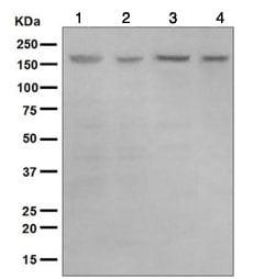 Western blot - Anti-HDAC6 antibody [EPR1699(2)] (ab124700)