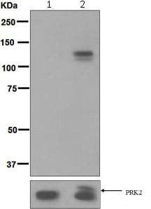 Western blot - Anti-PRK3+PRK2+PRK1(phospho T718+T816+T774) (phospho T816 + T718 + T774) antibody [EPR5671] (ab124709)