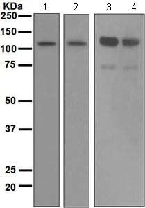 Western blot - Anti-Importin 9 antibody [EPR1352] (ab124710)