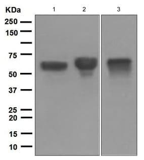 Western blot - Anti-Human IgA antibody [EPR5367] (ab124716)