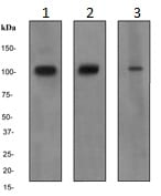 Western blot - Anti-FES antibody [EPR3229] (ab124726)