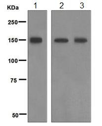 Western blot - Anti-Phospholipase C beta 3 antibody [EPR5951] (ab124735)