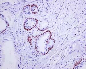 Immunohistochemistry (Formalin/PFA-fixed paraffin-embedded sections) - Anti-p63 antibody [EPR5701] (ab124762)