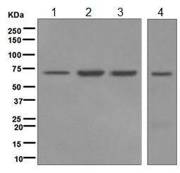 Western blot - Anti-LSS antibody [EPR6704(B)] (ab124785)
