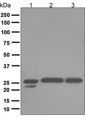 Western blot - Anti-COMT antibody [EPR6491(B)] (ab124813)