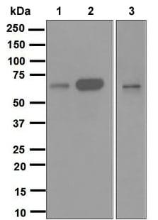 Western blot - Anti-Cdc25B antibody [EPR3459(2)] (ab124819)