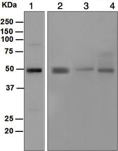Western blot - Anti-DC-SIGN antibody [EPR5588] (ab124828)