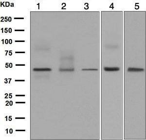 Western blot - Anti-FRA2 antibody [EPR4713(2)] (ab124830)