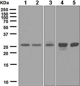 Western blot - Anti-integrin beta 4 binding protein antibody [EPR6512(B)] (ab124839)