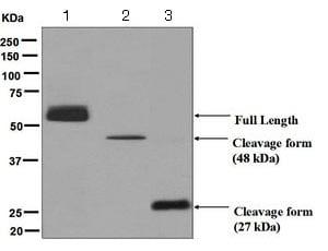 Western blot - Anti-CPN1 antibody [EPR6229] (ab124874)