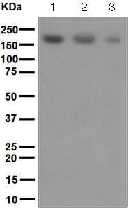 Western blot - Anti-SARA antibody [EPR5020] (ab124875)