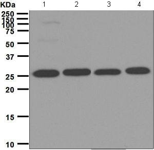 Western blot - Anti-Proteasome subunit alpha type 6 antibody [EPR5834] (ab124887)