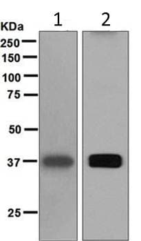 Western blot - Anti-liver Arginase antibody [EPR6671(B)] (ab124917)