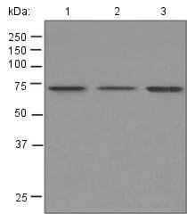 Western blot - Anti-5HT2C Receptor antibody [EPR6486] (ab124951)