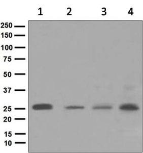 Western blot - Anti-TUSC1 antibody [3897-1] (ab124970)