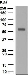 Western blot - Anti-Keratin 12 antibody [EPR1609(2)] (ab124975)
