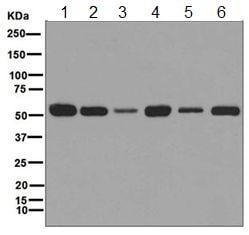 Western blot - Anti-LMAN1 antibody [EPR6979] (ab125006)