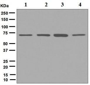 Western blot - Anti-NR5A2 / LRH1 antibody [EPR7000] (ab125034)