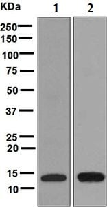 Western blot - Anti-LYNX1 antibody [EPR6829] (ab125035)