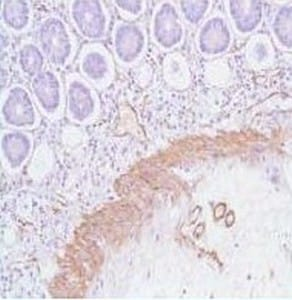 Immunohistochemistry (Formalin/PFA-fixed paraffin-embedded sections) - Anti-smooth muscle Actin antibody (ab125044)