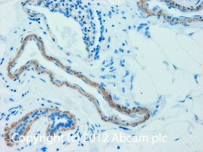 Immunohistochemistry (Formalin/PFA-fixed paraffin-embedded sections) - Anti-alpha smooth muscle Actin antibody [1A4] (Biotin) (ab125057)