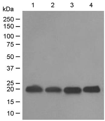 Western blot - Anti-DUSP3 antibody [EPR5492] (ab125077)