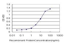 Sandwich ELISA - Anti-STK38 antibody [6F1] (ab125131)