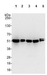 Western blot - Anti-PSMC3 antibody (ab125164)