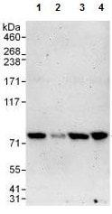 Western blot - Anti-PARN antibody (ab125185)