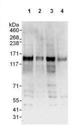 Western blot - Anti-SCAP antibody (ab125186)