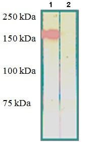 Western blot - Anti-RON antibody (ab125283)