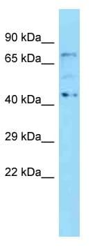 Western blot - Anti-KBTBD5 antibody (ab125337)