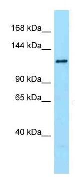 Western blot - Anti-DENND1A antibody (ab125347)