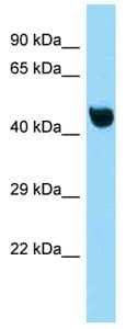Western blot - Anti-NFKBIL1 antibody (ab125348)