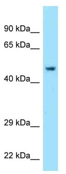 Western blot - Anti-Acrosin antibody (ab125362)