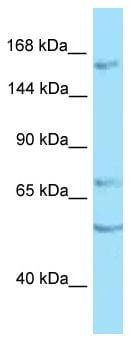 Western blot - Anti-PTP rho antibody (ab125390)